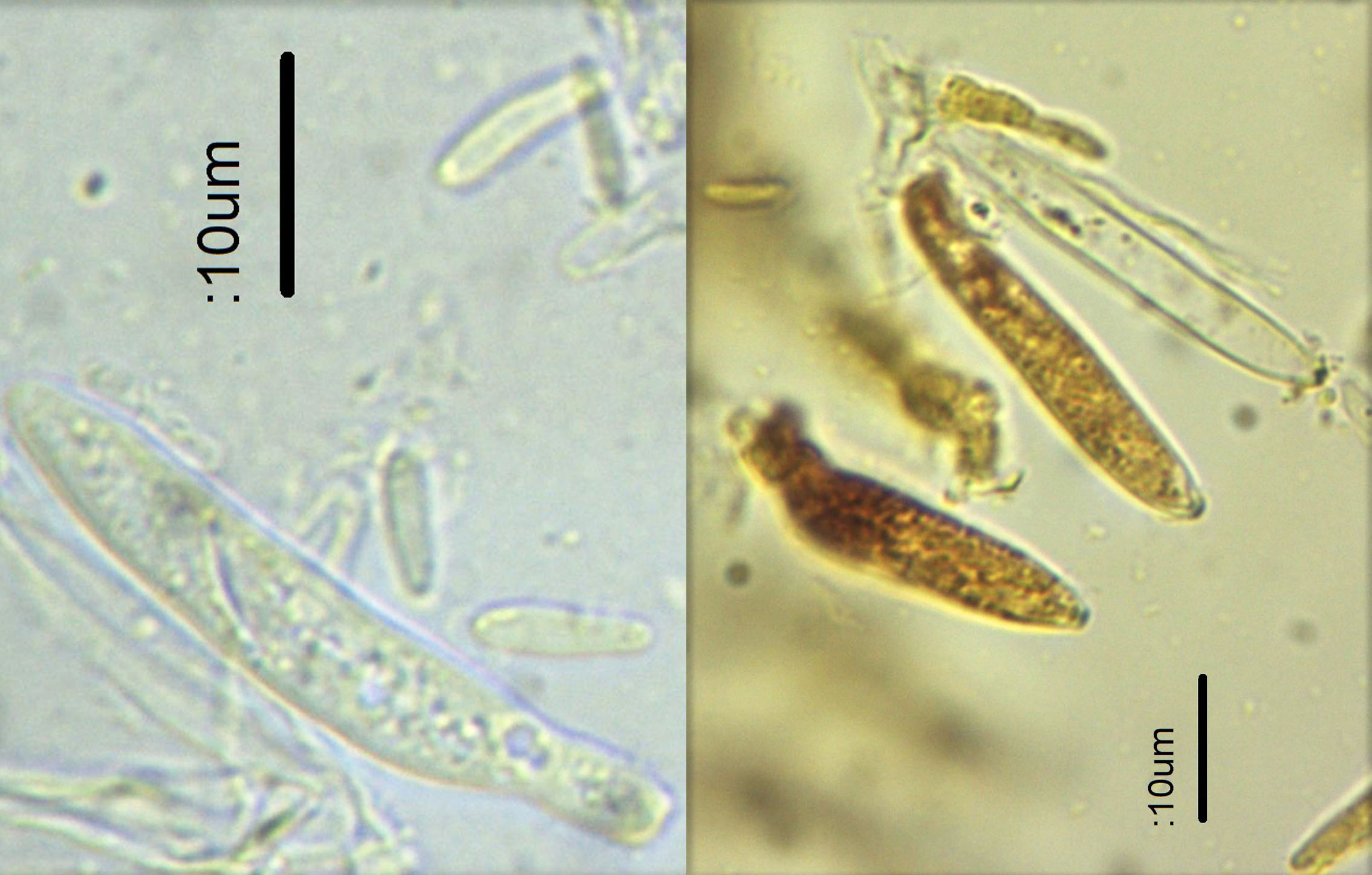 5 Asci and spores.jpg