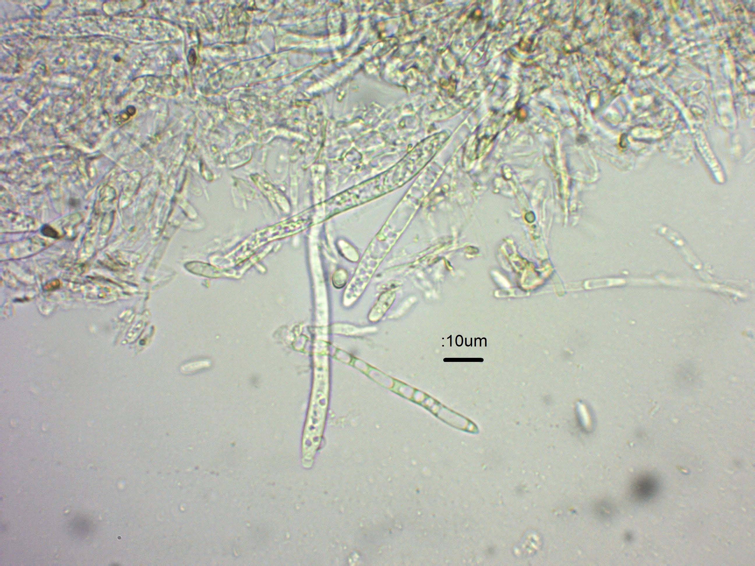 4 Asci and paraphyses in water x600.jpg
