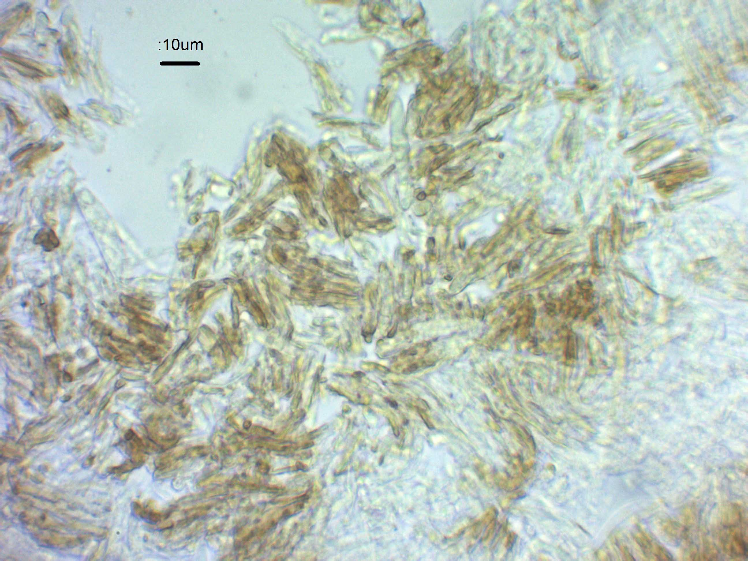 5 Non hymenial cells in water x600, herbarium specimen .jpg