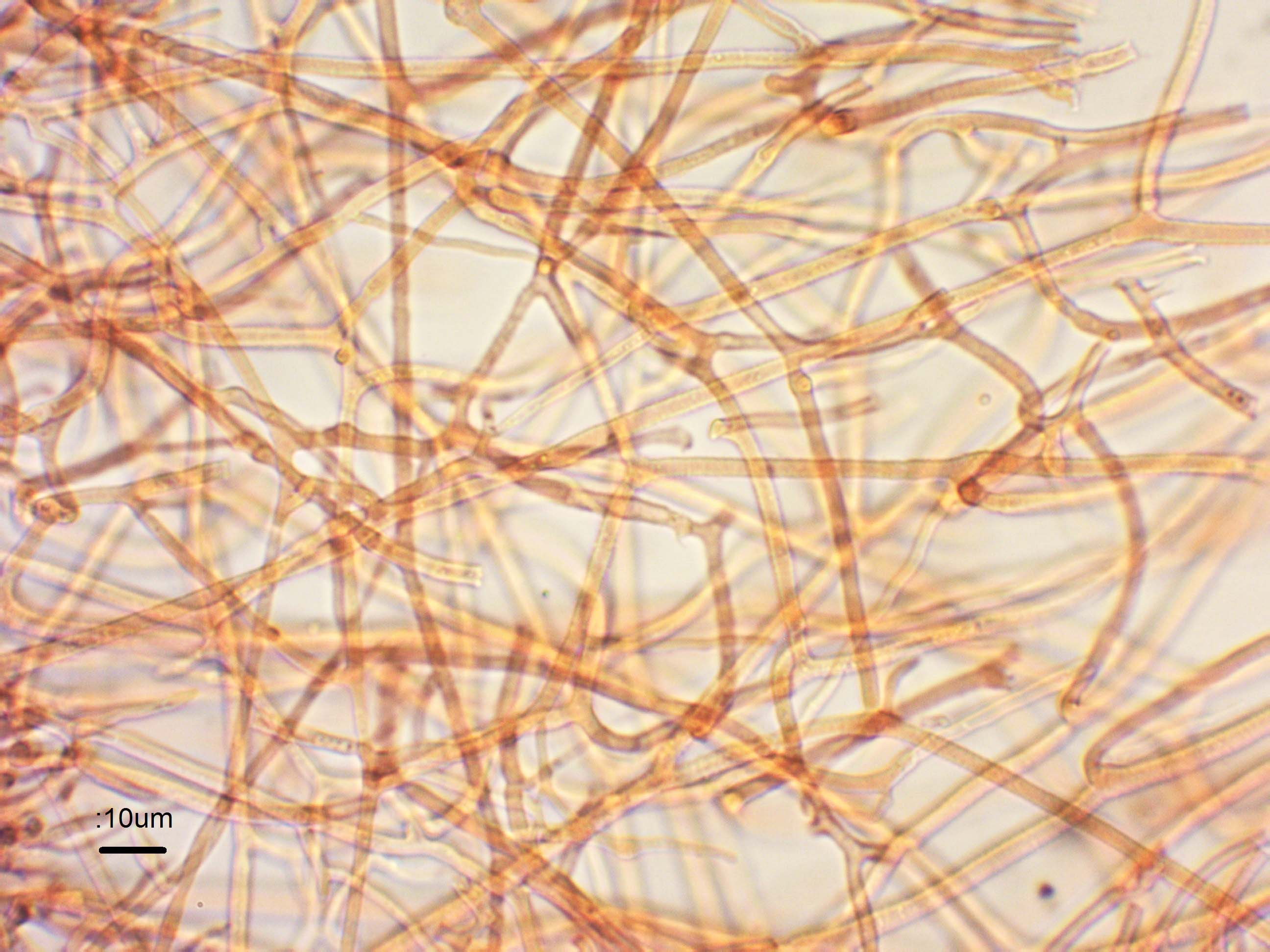 6 frozen hyphae 600 cr.jpg