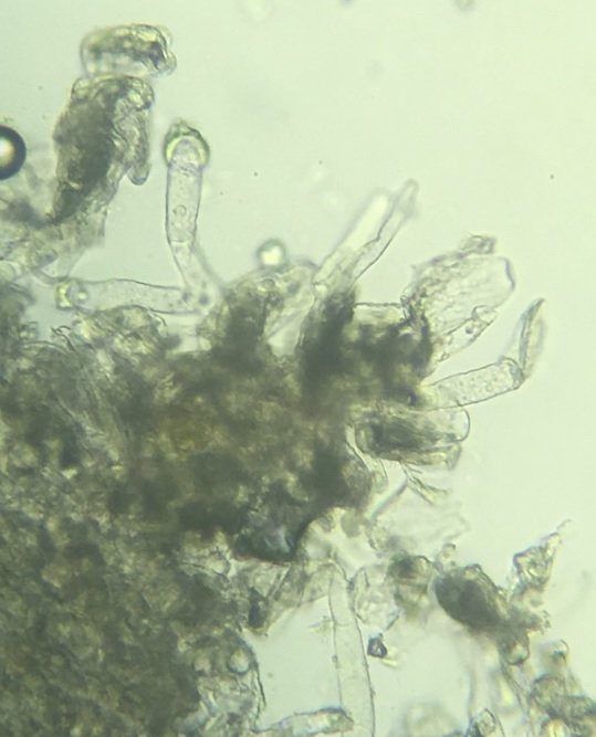 Mildew on Medick Microscope 2.jpg